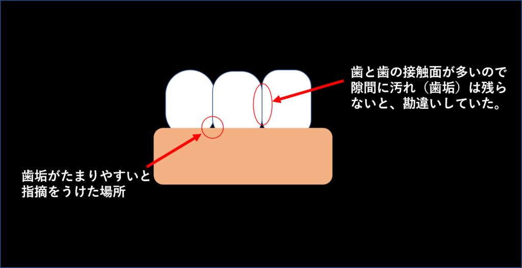 歯垢がたまるところ